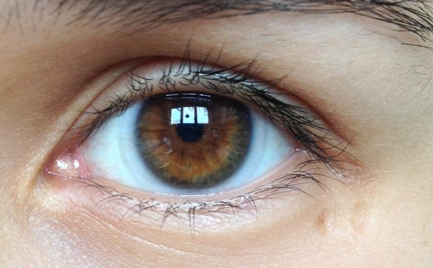 nya linser synoptik.jpg